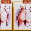 Buttock Augmentation Created By  Posted By Dr Kaldari Surgi Art Centre
