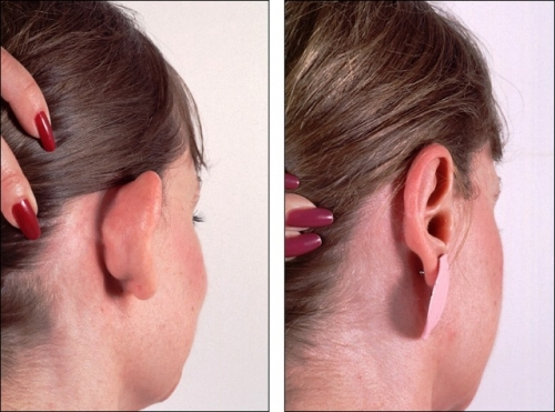 Otoplasty Created By  Posted By Dr Kaldari Surgi Art Centre