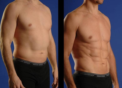 Liposuction Created By  Posted By Dr Kaldari Surgi Art Centre